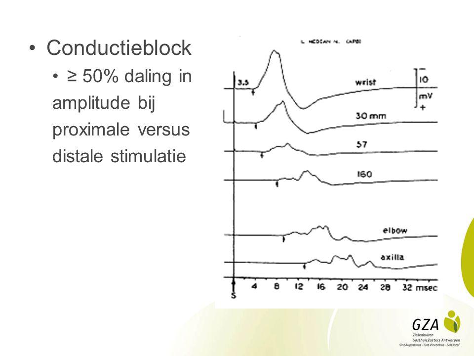 . Conductieblock ≥ 50% daling in amplitude bij proximale versus distale stimulatie