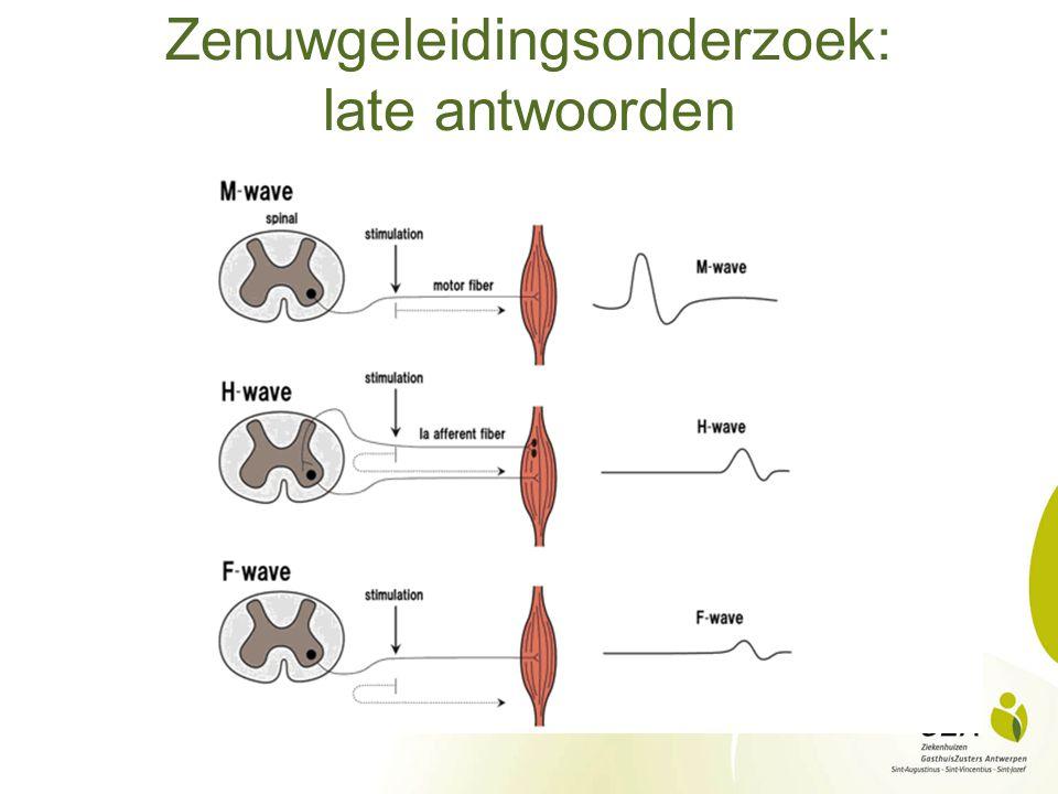 Naald-EMG: rust Normaal: Geen spontane spieractiviteit Insertie-activiteit/eindplaatpotentialen