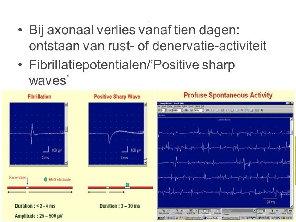 . Bij axonaal verlies vanaf tien dagen: ontstaan van rust- of denervatie-activiteit Fibrillatiepotentialen/'Positive sharp waves'