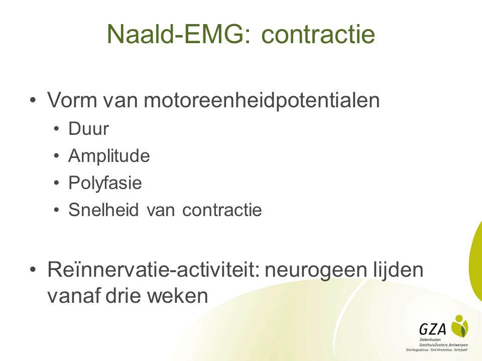 Naald-EMG: contractie Vorm van motoreenheidpotentialen Duur Amplitude Polyfasie Snelheid van contractie Reïnnervatie-activiteit: neurogeen lijden vana