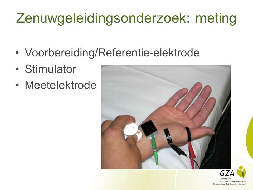 Zenuwgeleidingsonderzoek: meting Voorbereiding/Referentie-elektrode Stimulator Meetelektrode