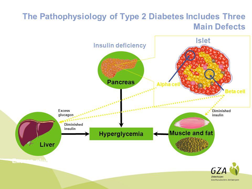 Insulines 1 injectie 2 injecties 3 injecties 4 injecties