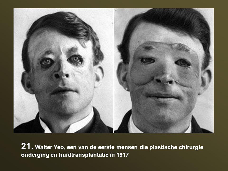 21. Walter Yeo, een van de eerste mensen die plastische chirurgie onderging en huidtransplantatie in 1917