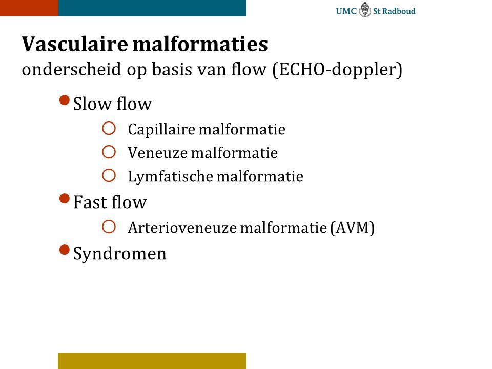 Vasculaire malformaties onderscheid op basis van flow (ECHO-doppler) Slow flow o Capillaire malformatie o Veneuze malformatie o Lymfatische malformatie Fast flow o Arterioveneuze malformatie (AVM) Syndromen