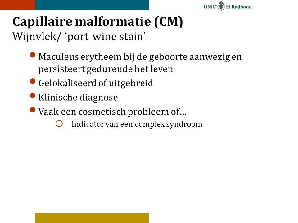 Capillaire malformatie (CM) Wijnvlek/ 'port-wine stain' Maculeus erytheem bij de geboorte aanwezig en persisteert gedurende het leven Gelokaliseerd of uitgebreid Klinische diagnose Vaak een cosmetisch probleem of… o Indicator van een complex syndroom