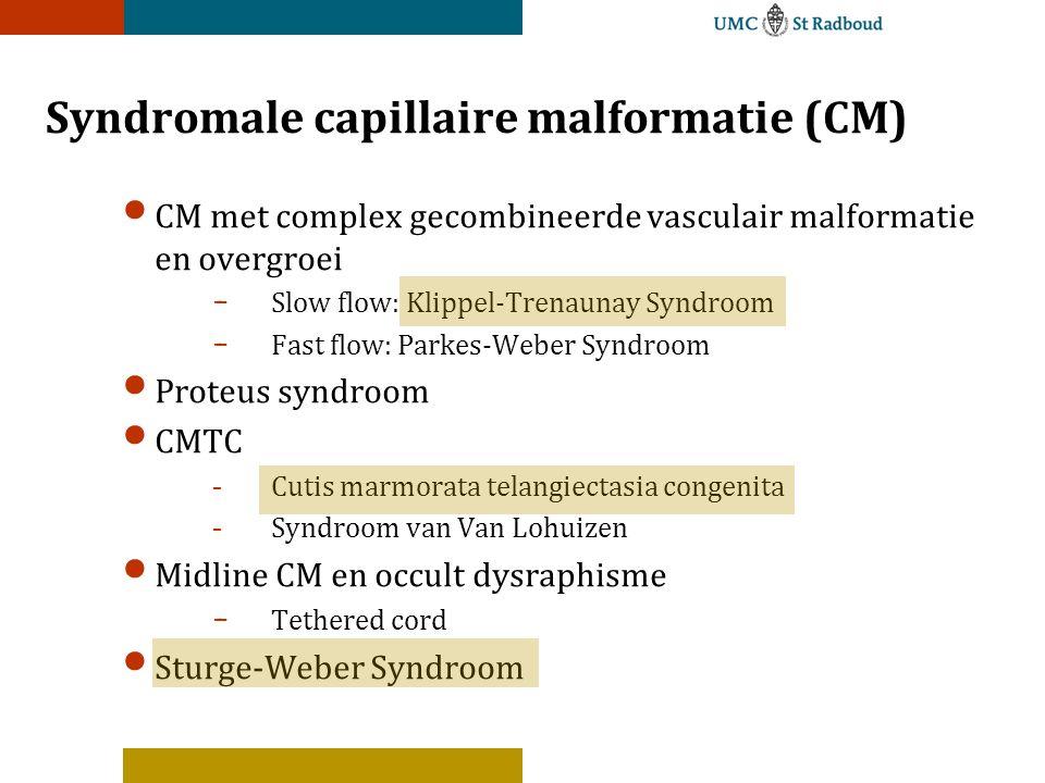Syndromale capillaire malformatie (CM) CM met complex gecombineerde vasculair malformatie en overgroei - Slow flow: Klippel-Trenaunay Syndroom - Fast flow: Parkes-Weber Syndroom Proteus syndroom CMTC -Cutis marmorata telangiectasia congenita -Syndroom van Van Lohuizen Midline CM en occult dysraphisme - Tethered cord Sturge-Weber Syndroom