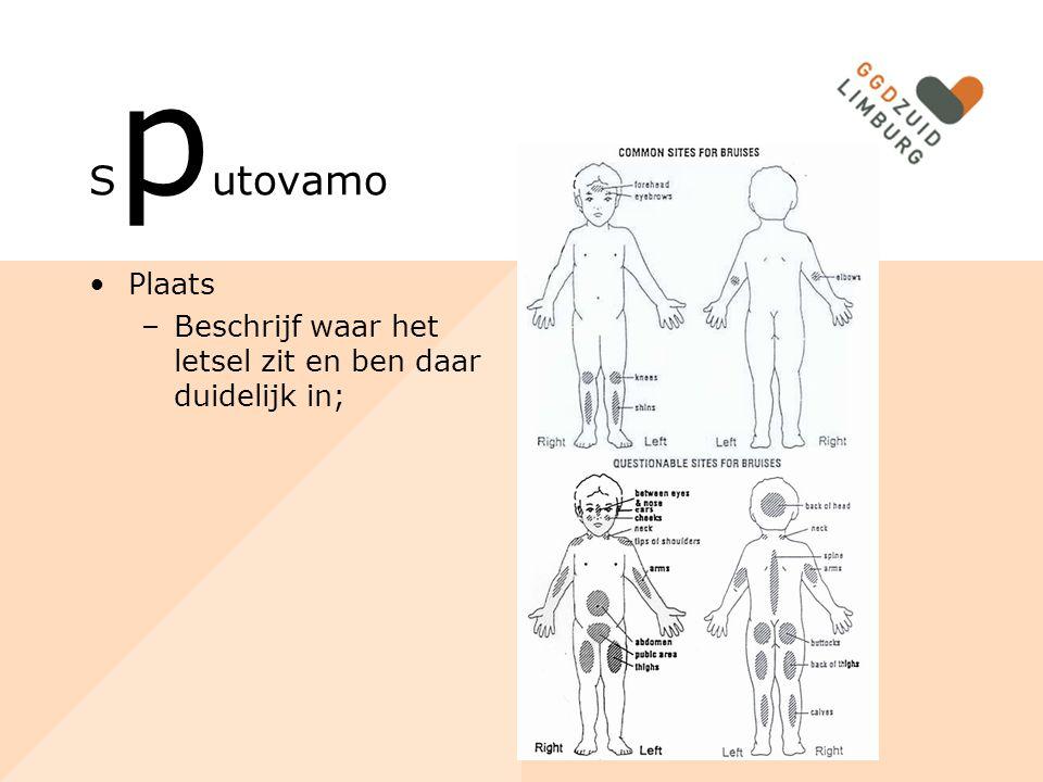 S p utovamo Plaats –Beschrijf waar het letsel zit en ben daar duidelijk in;
