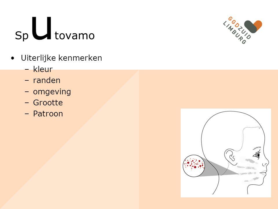 Sp u tovamo Uiterlijke kenmerken –kleur –randen –omgeving –Grootte –Patroon