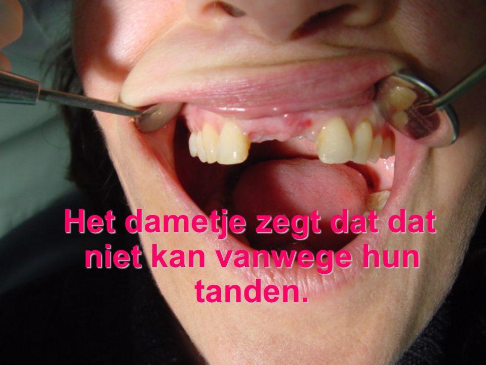 Het dametje zegt dat dat niet kan vanwege hun tanden.