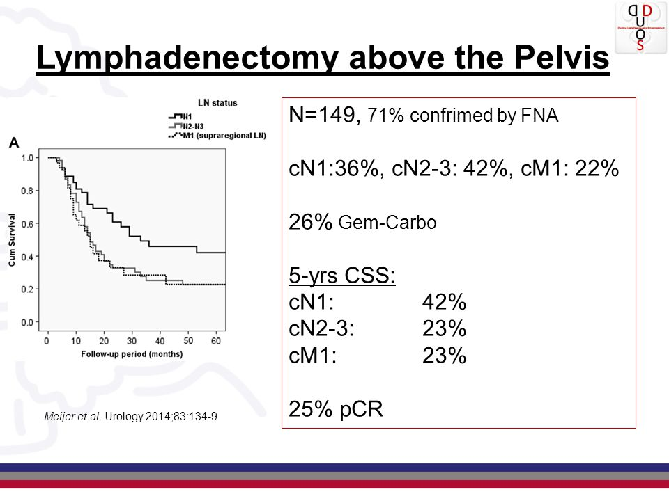 Lymphadenectomy above the Pelvis Meijer et al. Urology 2014;83:134-9 N=149, 71% confrimed by FNA cN1:36%, cN2-3: 42%, cM1: 22% 26% Gem-Carbo 5-yrs CSS