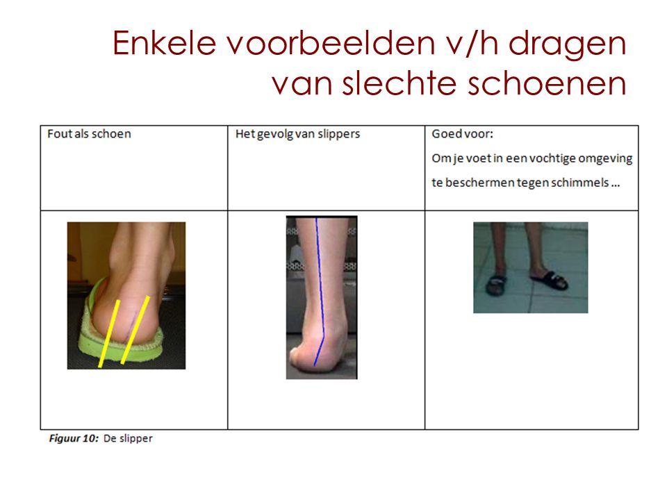 Enkele voorbeelden v/h dragen van slechte schoenen