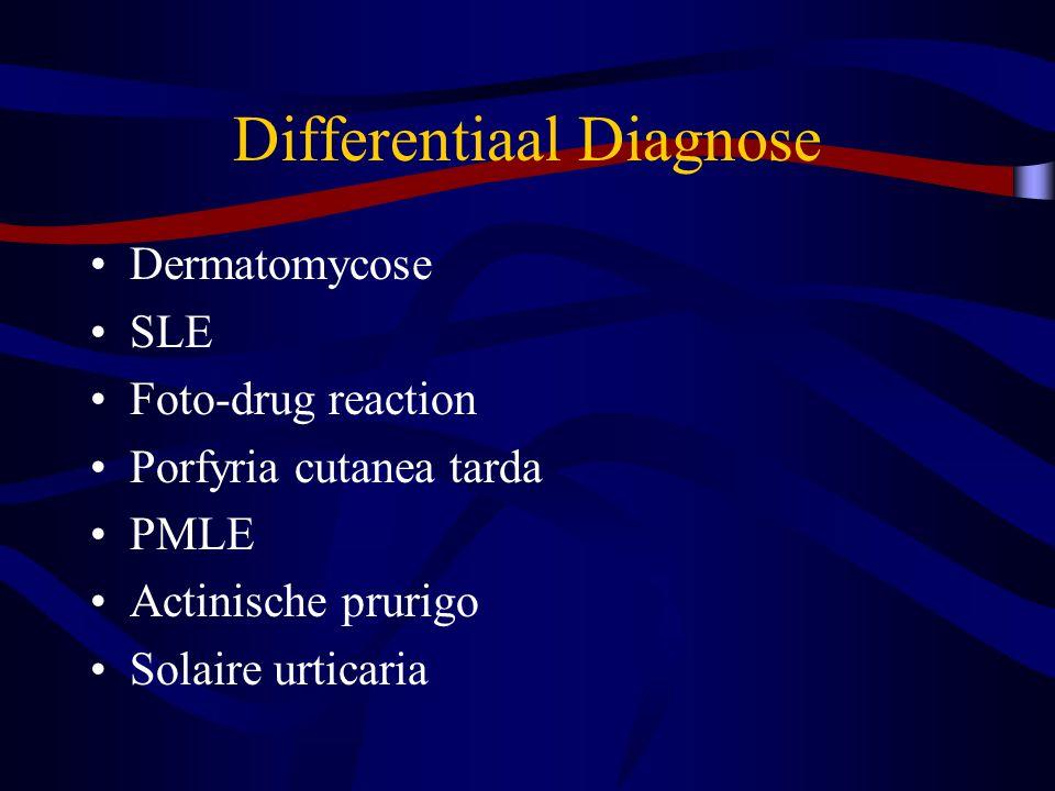 Differentiaal Diagnose Dermatomycose SLE Foto-drug reaction Porfyria cutanea tarda PMLE Actinische prurigo Solaire urticaria
