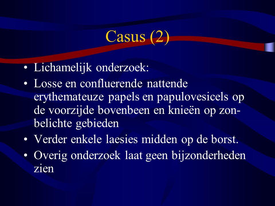 Casus (2) Lichamelijk onderzoek: Losse en confluerende nattende erythemateuze papels en papulovesicels op de voorzijde bovenbeen en knieën op zon- bel