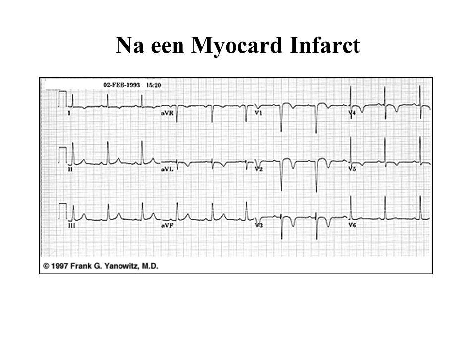 Na een Myocard Infarct