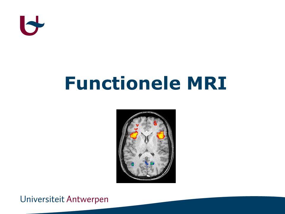 Functionele MRI