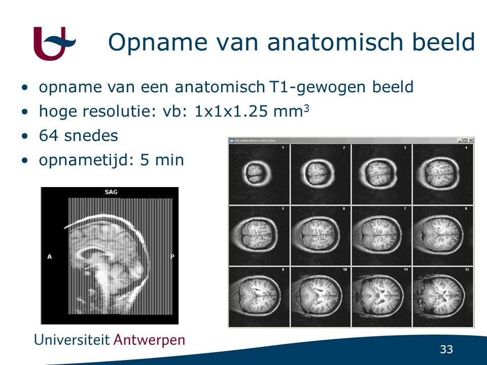 33 Opname van anatomisch beeld opname van een anatomisch T1-gewogen beeld hoge resolutie: vb: 1x1x1.25 mm 3 64 snedes opnametijd: 5 min