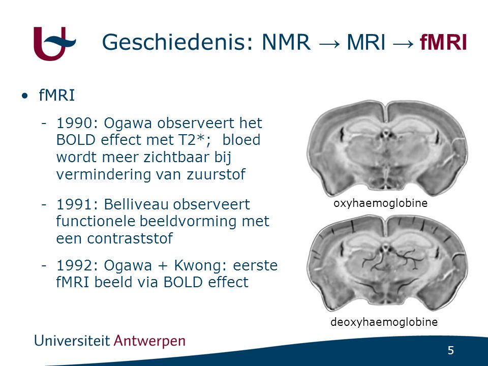 6 fMRI activatie Time  Brain Activity Kwong et al., 1992 Flikkerend bord OFF (60 s) - ON (60 s) -OFF (60 s) - ON (60 s) - OFF (60 s)