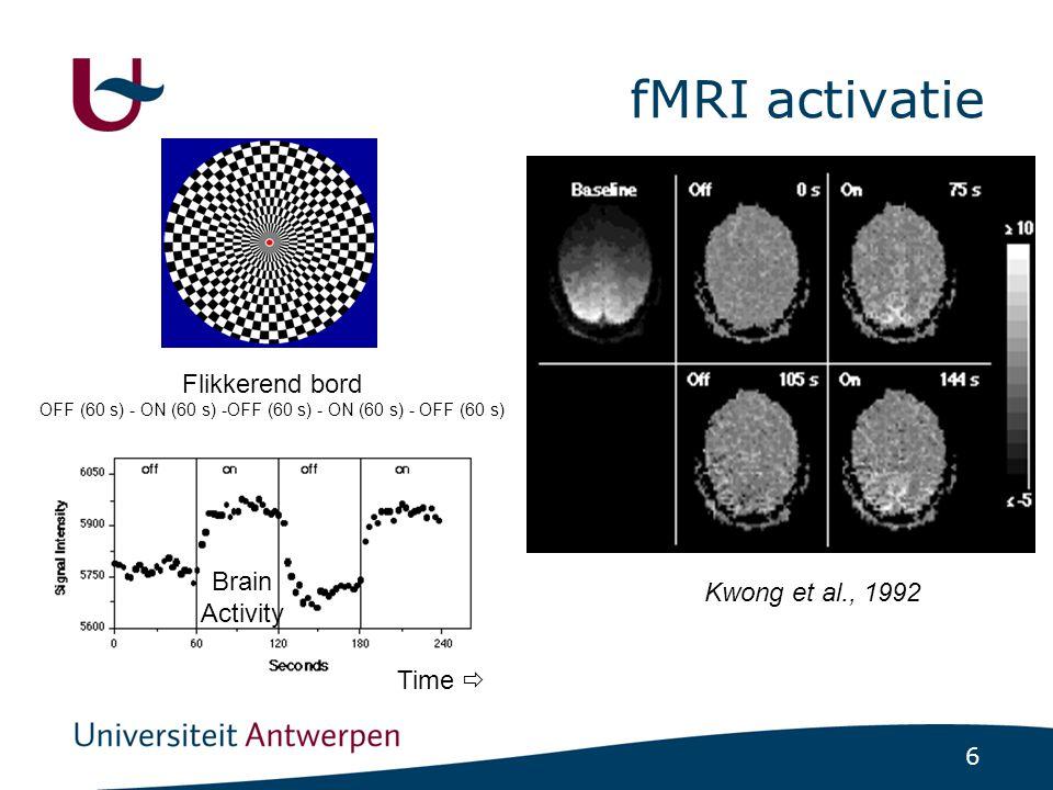 convolved model basic model fMRI signal Statistische tests voor fMRI