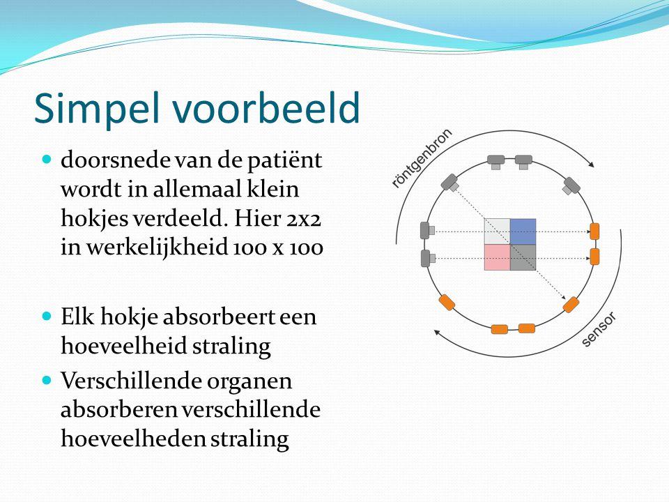Simpel voorbeeld doorsnede van de patiënt wordt in allemaal klein hokjes verdeeld. Hier 2x2 in werkelijkheid 100 x 100 Elk hokje absorbeert een hoevee