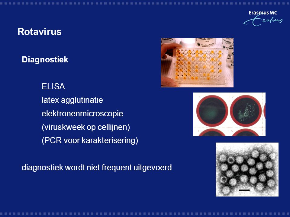 Rotavirus Diagnostiek ELISA latex agglutinatie elektronenmicroscopie (viruskweek op cellijnen) (PCR voor karakterisering) diagnostiek wordt niet frequ