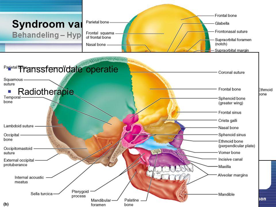 Cushing & Addison 26 Syndroom van Cushing Behandeling – Hypofyse adenoom  Transsfenoïdale operatie  Radiotherapie  Transsfenoïdale operatie  Radio