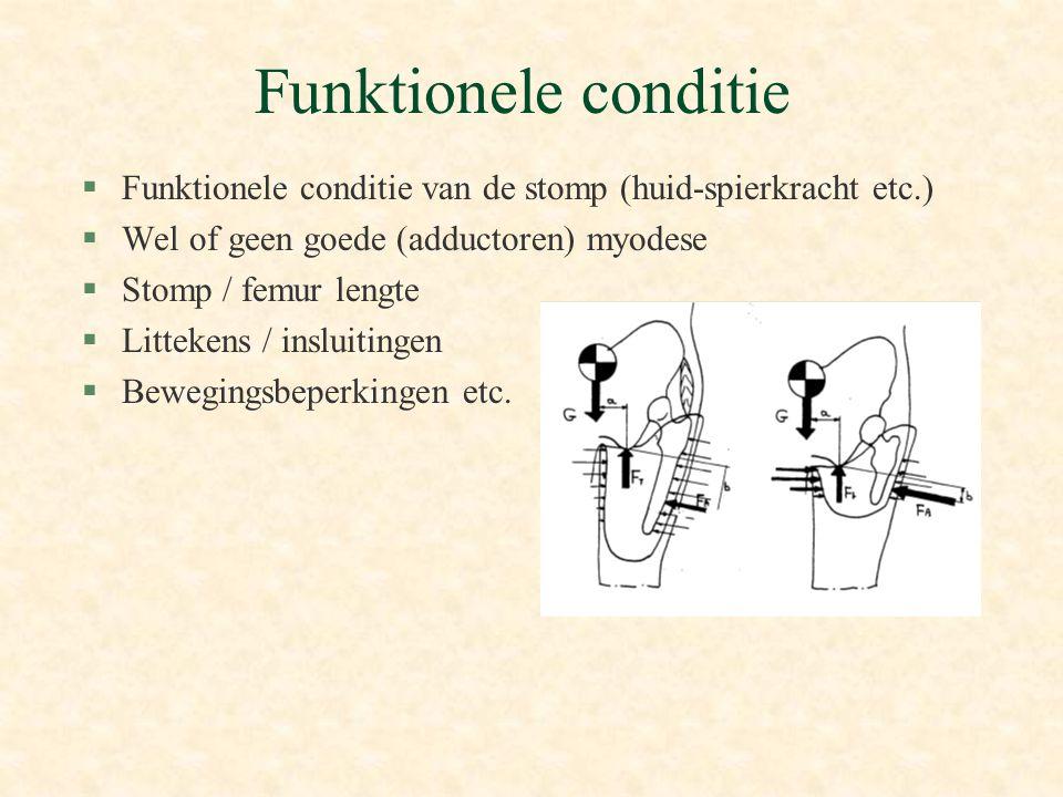 Funktionele conditie §Funktionele conditie van de stomp (huid-spierkracht etc.) §Wel of geen goede (adductoren) myodese §Stomp / femur lengte §Littekens / insluitingen §Bewegingsbeperkingen etc.