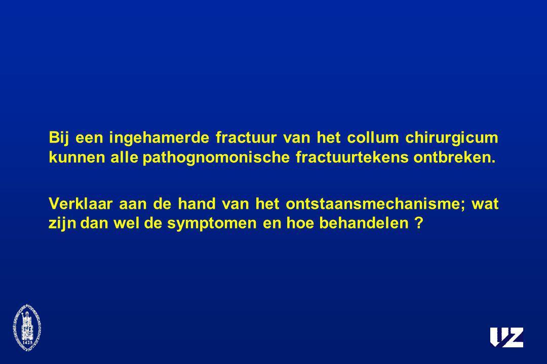 Bij een ingehamerde fractuur van het collum chirurgicum kunnen alle pathognomonische fractuurtekens ontbreken. Verklaar aan de hand van het ontstaansm