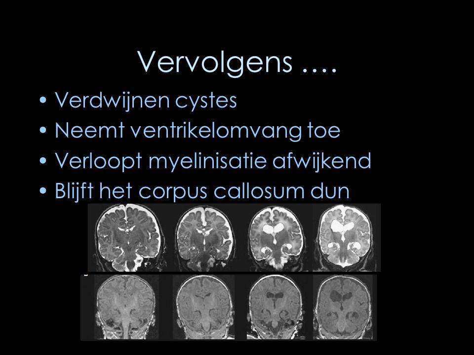 Vervolgens …. Verdwijnen cystes Neemt ventrikelomvang toe Verloopt myelinisatie afwijkend Blijft het corpus callosum dun