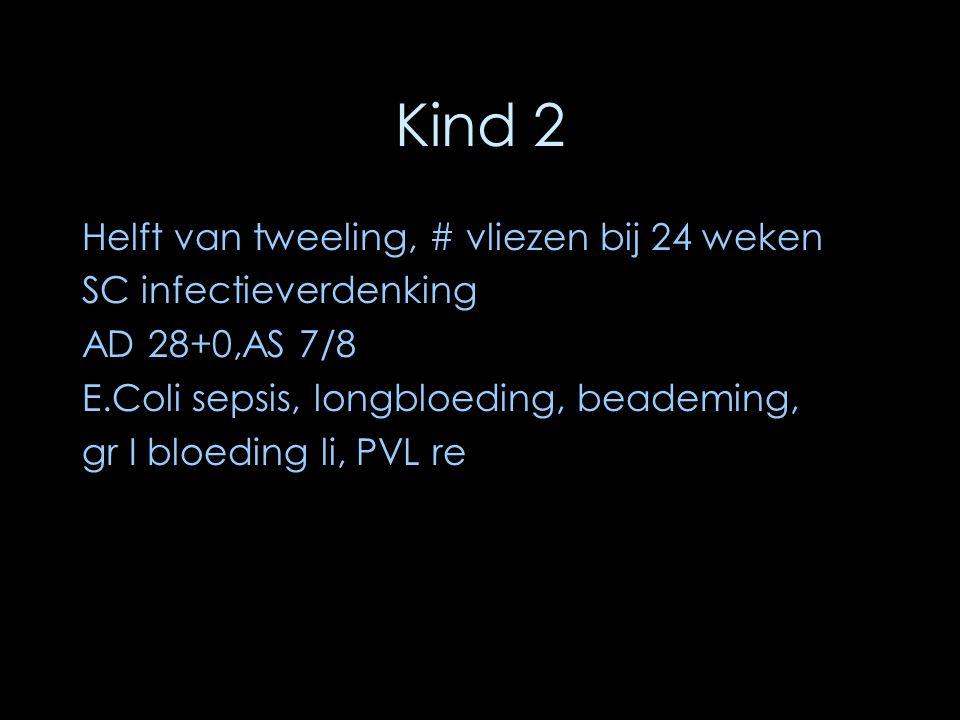 Kind 2 Helft van tweeling, # vliezen bij 24 weken SC infectieverdenking AD 28+0,AS 7/8 E.Coli sepsis, longbloeding, beademing, gr I bloeding li, PVL r