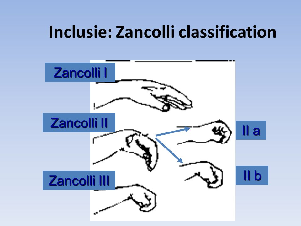 Inclusie: Zancolli classification Zancolli I Zancolli II Zancolli III II a II b