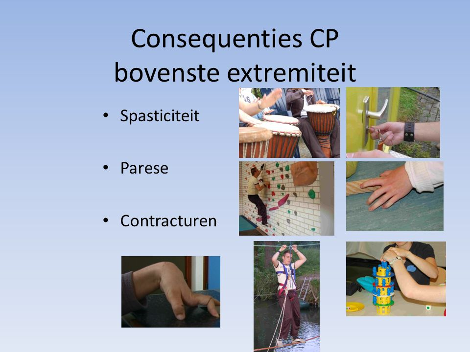 Consequenties CP bovenste extremiteit Spasticiteit Parese Contracturen