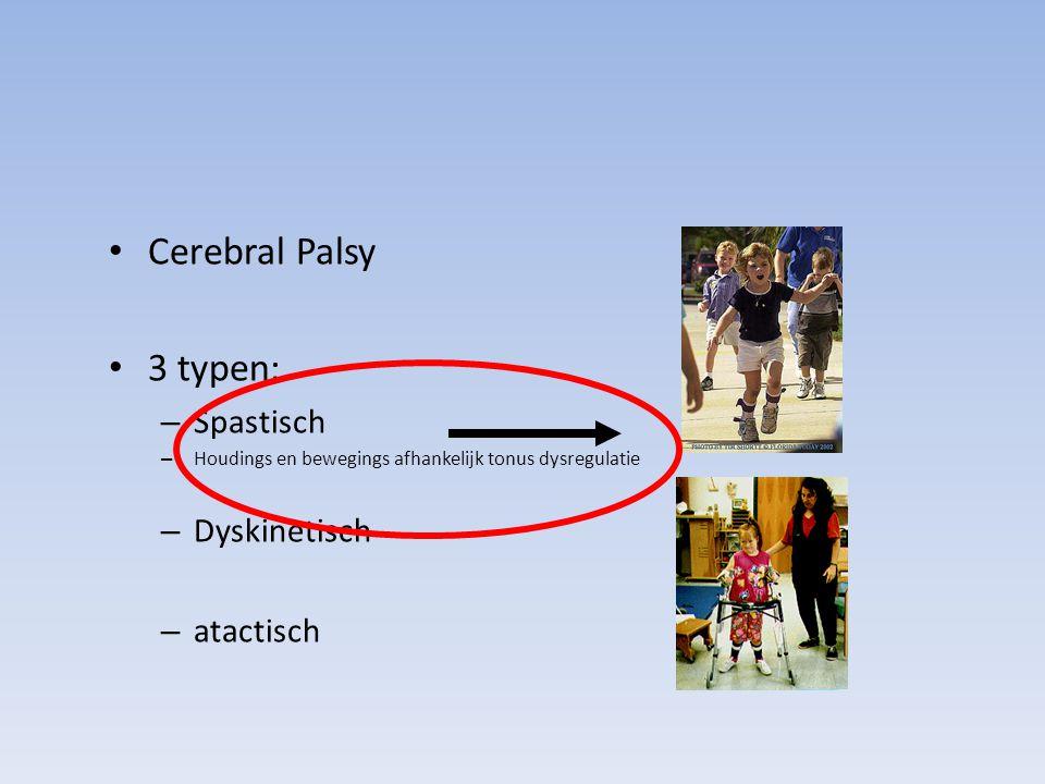 Cerebral Palsy 3 typen: – Spastisch – Houdings en bewegings afhankelijk tonus dysregulatie – Dyskinetisch – atactisch
