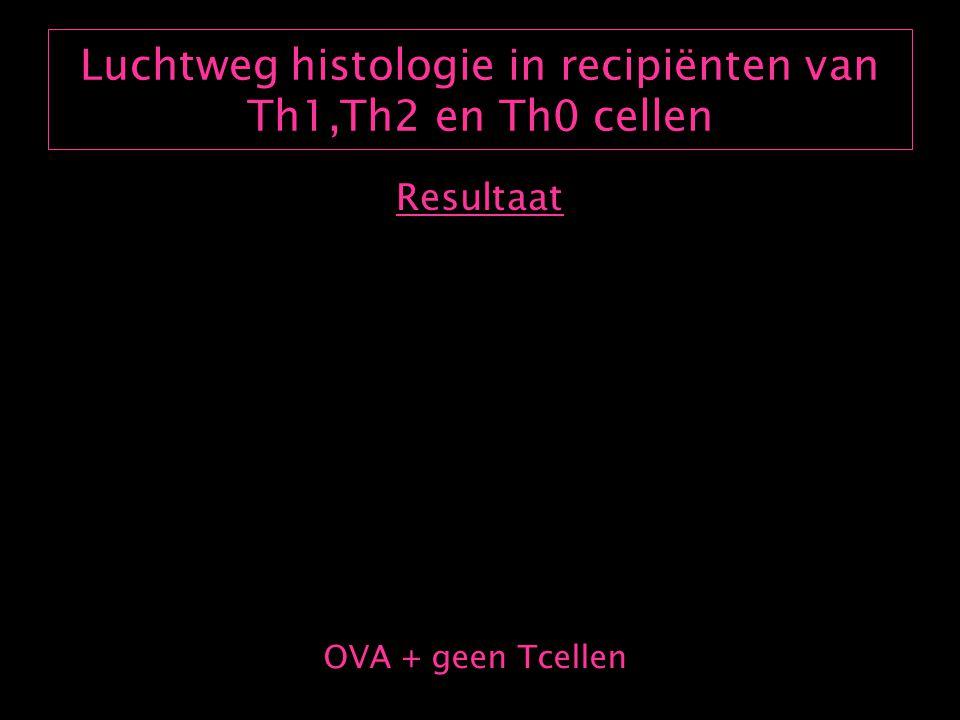 Th1 cellen induceren geen airway hyperreactivity (AHR) Resultaat