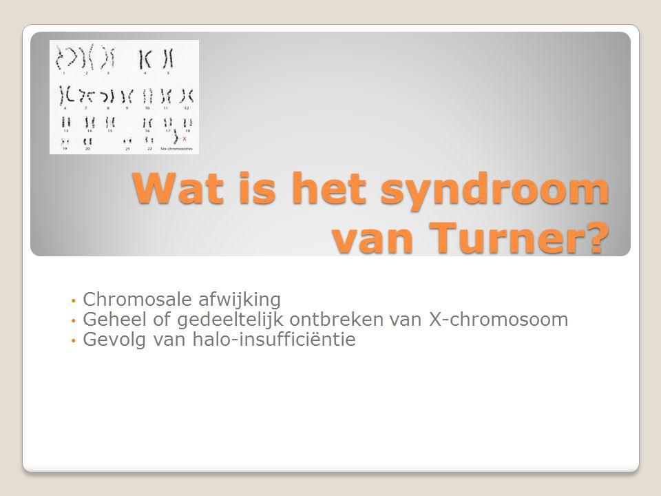 Wat is het syndroom van Turner? Chromosale afwijking Geheel of gedeeltelijk ontbreken van X-chromosoom Gevolg van halo-insufficiëntie