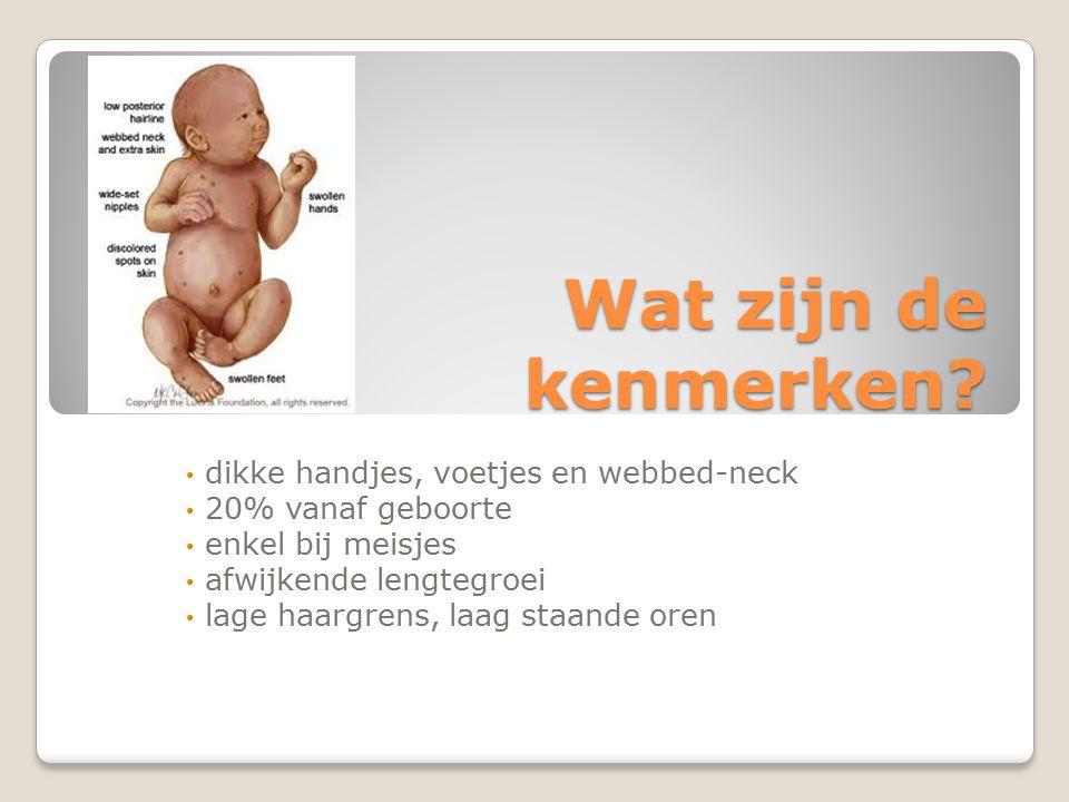 Wat zijn de kenmerken? dikke handjes, voetjes en webbed-neck 20% vanaf geboorte enkel bij meisjes afwijkende lengtegroei lage haargrens, laag staande