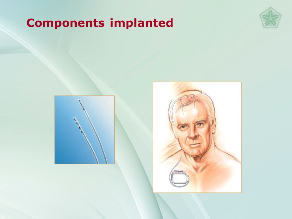 Monopolar Stimulation mode can be adjusted to reach different regions of tissue (+) Bipolar (+) (-)