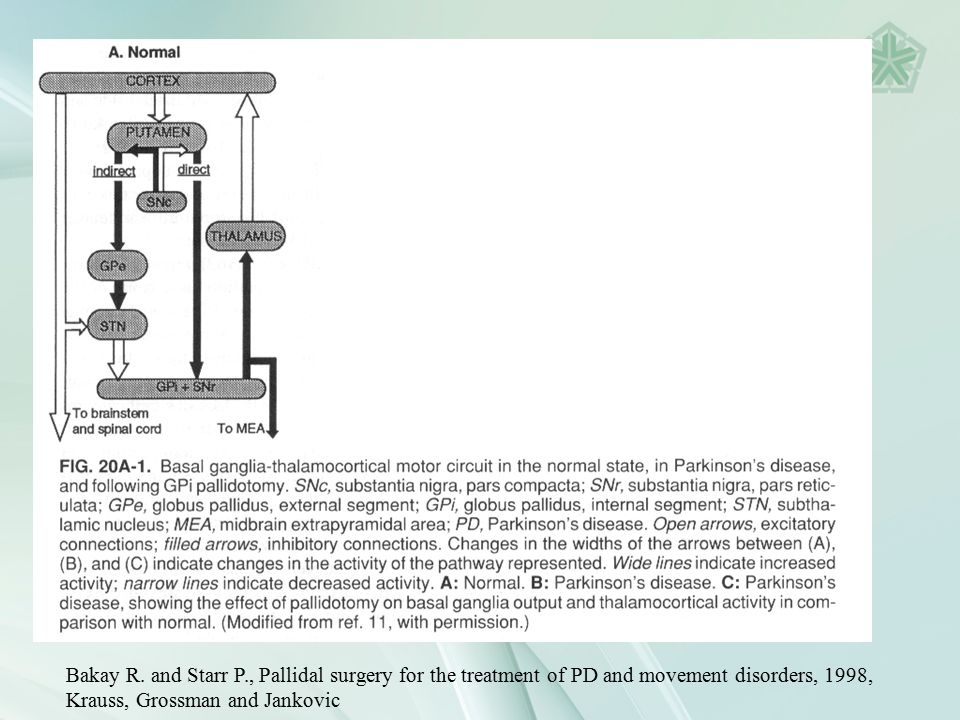 Bakay R. and Starr P., Pallidal surgery for the treatment of PD and movement disorders, 1998, Krauss, Grossman and Jankovic