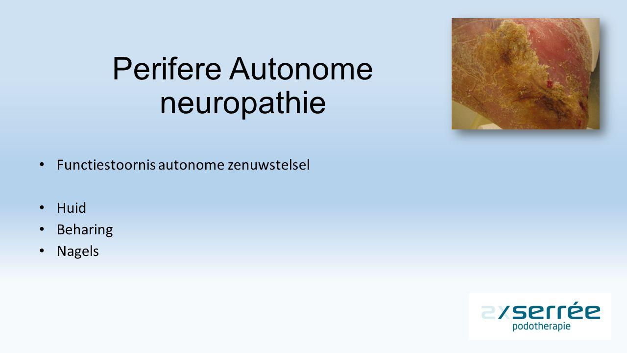Perifere Autonome neuropathie Functiestoornis autonome zenuwstelsel Huid Beharing Nagels