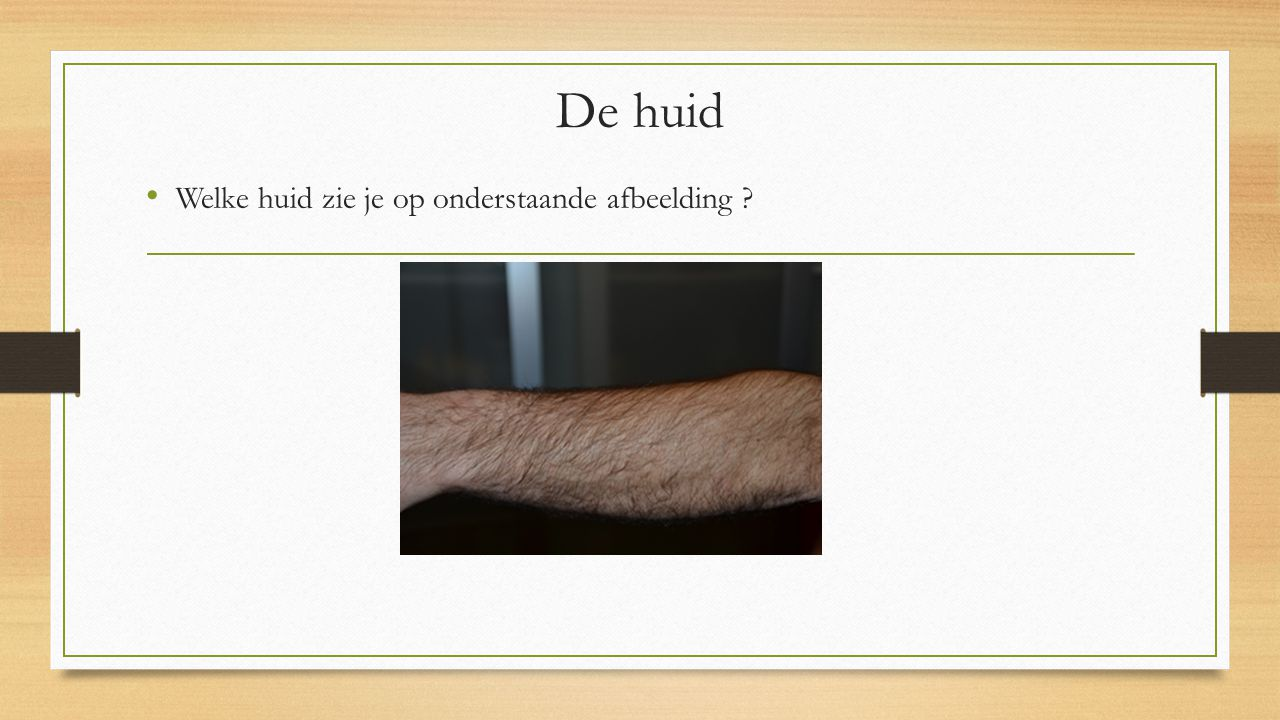 Welke huid zie je op onderstaande afbeelding ? De huid
