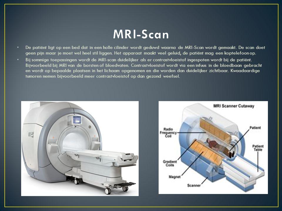 De patiënt ligt op een bed dat in een holle cilinder wordt geduwd waarna de MRI-Scan wordt gemaakt. De scan doet geen pijn maar je moet wel heel stil
