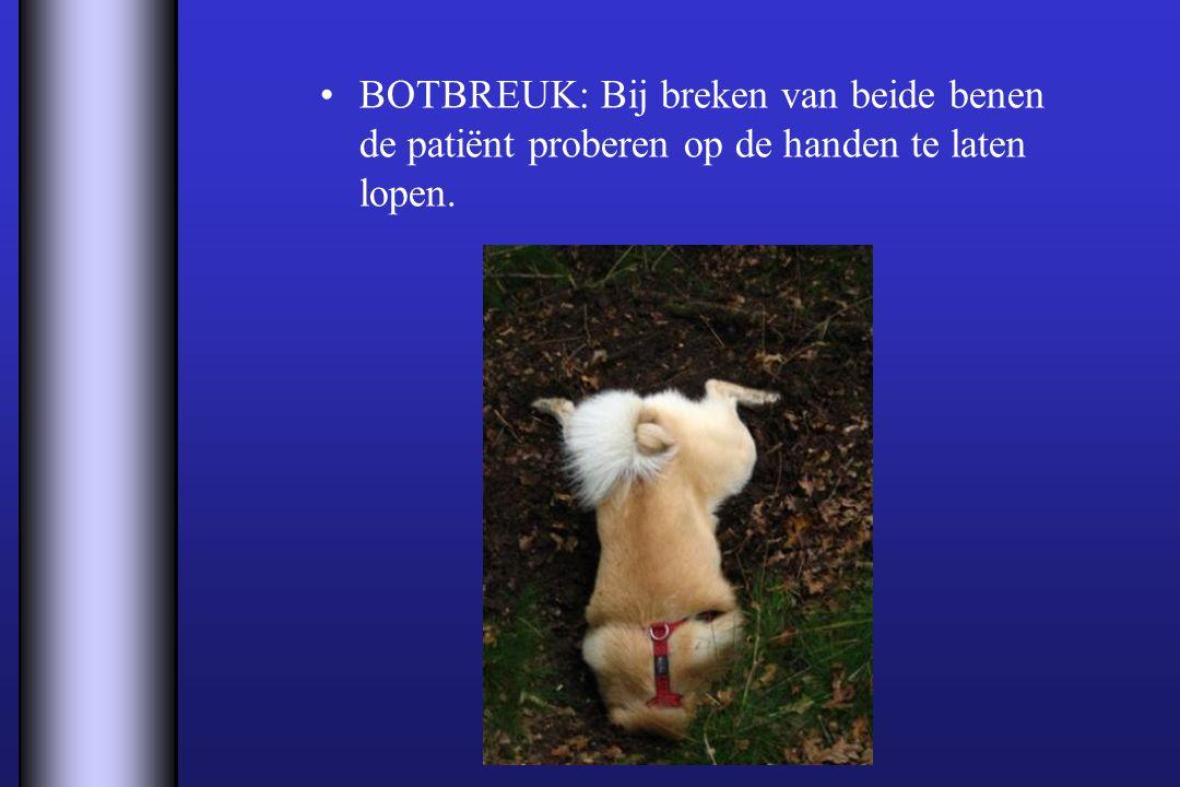 BOTBREUK: Bij breken van beide benen de patiënt proberen op de handen te laten lopen.