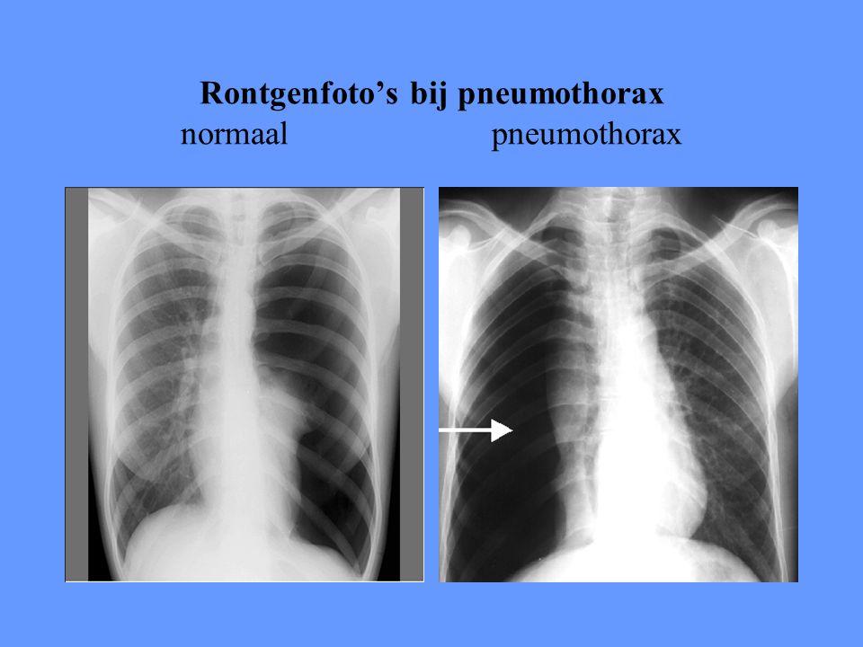 Rontgenfoto's bij pneumothorax normaal pneumothorax