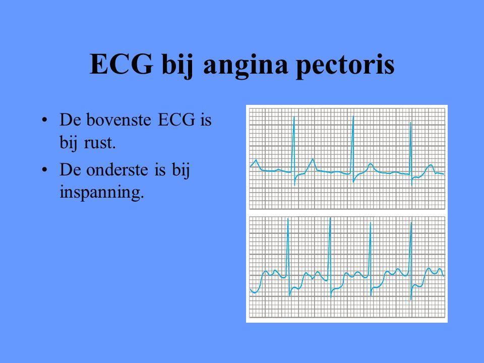ECG bij angina pectoris De bovenste ECG is bij rust. De onderste is bij inspanning.