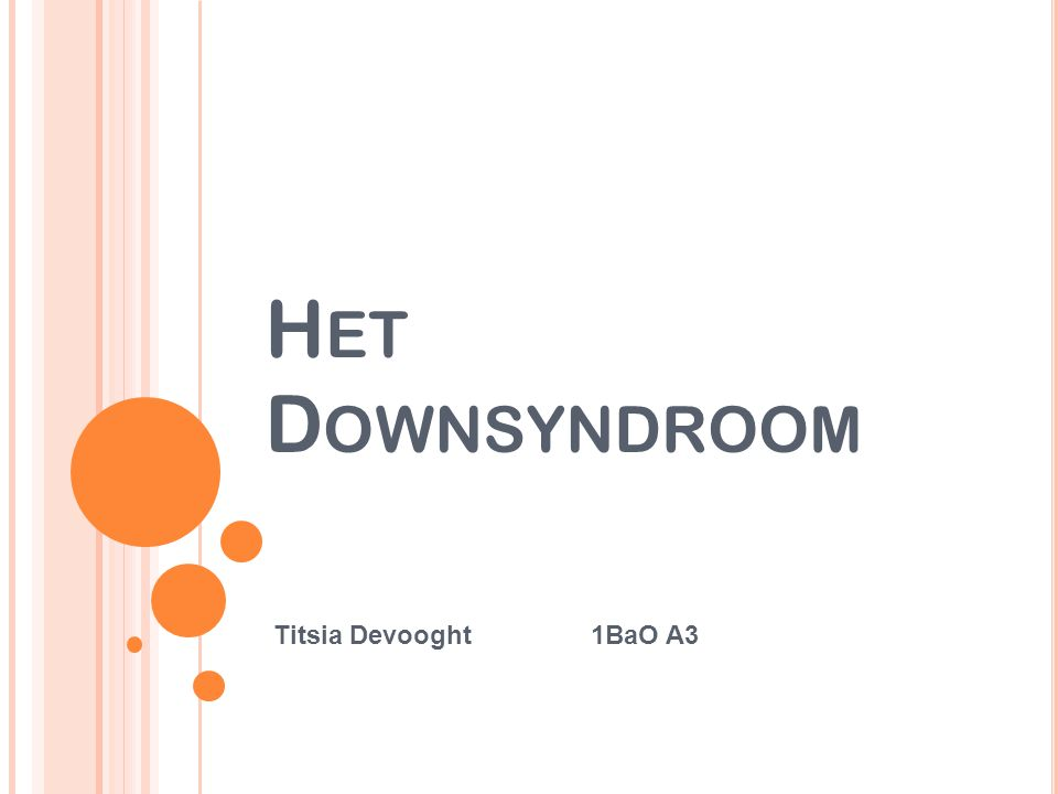H ET D OWNSYNDROOM Titsia Devooght1BaO A3