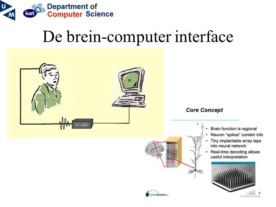 De brein-computer interface
