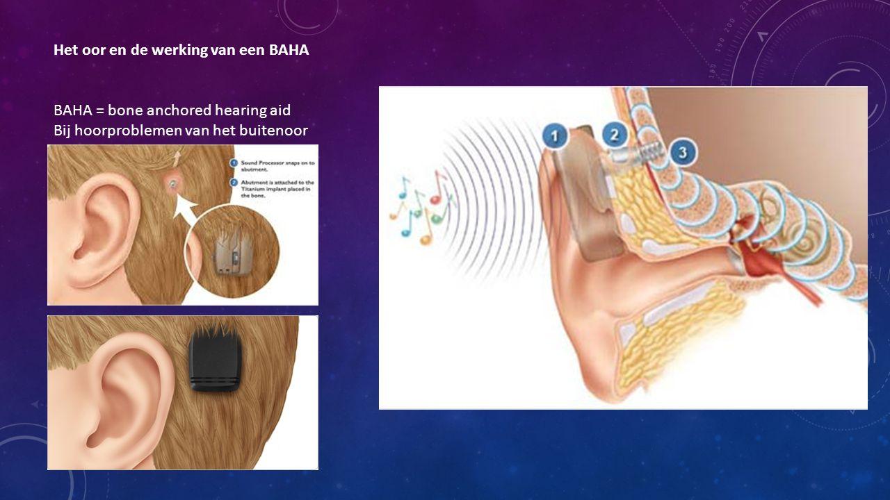 Het oor en de werking van een BAHA BAHA = bone anchored hearing aid Bij hoorproblemen van het buitenoor