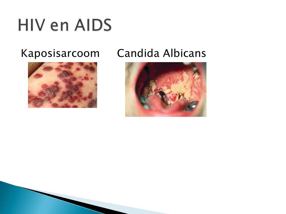 Kaposisarcoom Candida Albicans