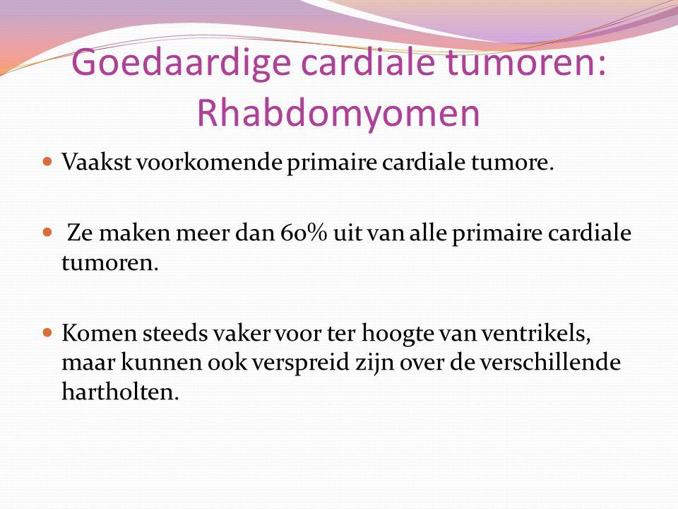 Goedaardige cardiale tumoren: Rhabdomyomen Vaakst voorkomende primaire cardiale tumore. Ze maken meer dan 60% uit van alle primaire cardiale tumoren.