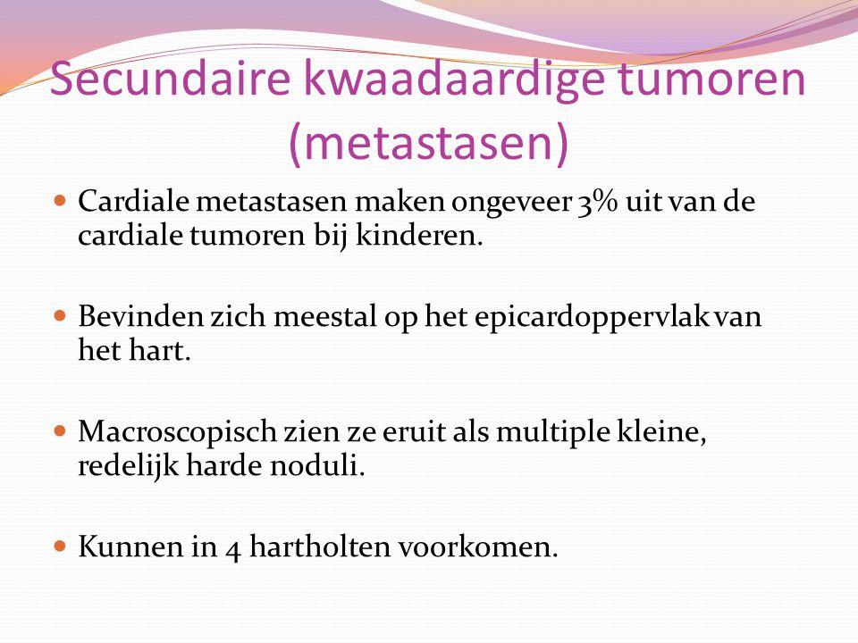 Secundaire kwaadaardige tumoren (metastasen) Cardiale metastasen maken ongeveer 3% uit van de cardiale tumoren bij kinderen. Bevinden zich meestal op