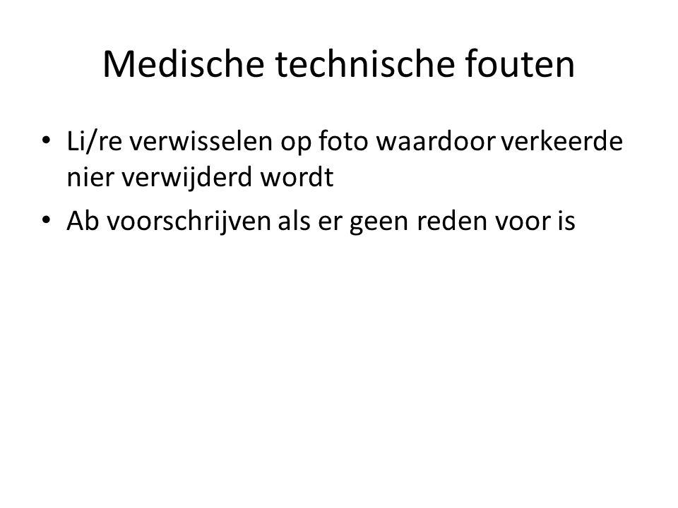 Medische technische fouten Li/re verwisselen op foto waardoor verkeerde nier verwijderd wordt Ab voorschrijven als er geen reden voor is